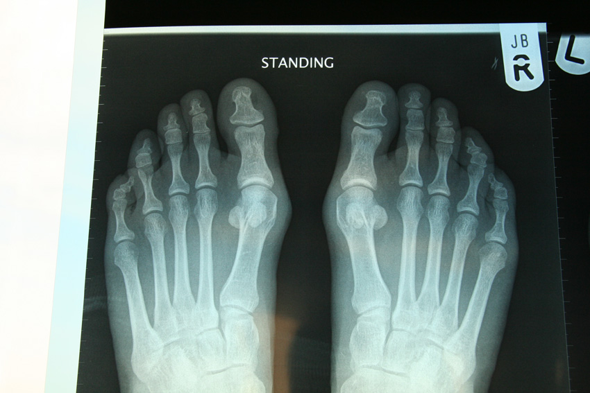 Foot Surgery: Does a Sesamoidectomy Mean the End of My Running Career?