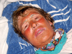 Diana Nyad after being pulled from the water on her last Havana to Key West attempt