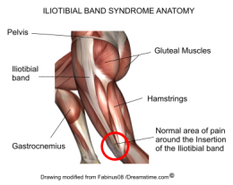 iliotibial-band
