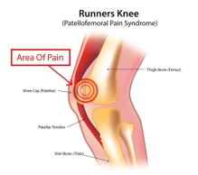 runners-knee-patellofemoral-pain-syndrome